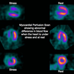 myocardial-perfusion-scan